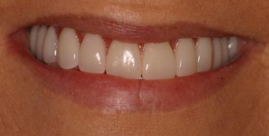 holiday_teeth_02